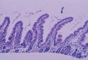 Figura 8- Microfotografia de biópsia do intestino delgado, em microscopia óptica comum, grande aumento, de paciente portador de Doença Celíaca 6 meses após início da dieta isenta de glúten. As vilosidades intestinais encontram-se digitiformes, as glândulas crípitcas normais e o infiltrado linfo-plasmocitário da lâmina própria discreto, células epiteliais cilíndricas com núcleo em posição basal e glândulas crípticas preservando a relação vilosidade/cripta 4ou5:1. Presentemente, os critérios diagnósticos de graduação das alterações morfológicas da mucosa intestinal aceitos internacionalmente para o diagnóstico da DC são os propostos por Marsh, em 1992 (Figuras 9-10).