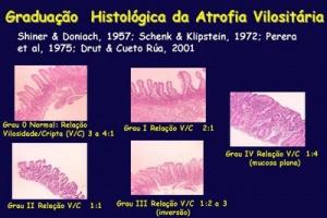 Figura 10 - Graduação histológica das lesões do intestino delgado na Doença Celíaca.