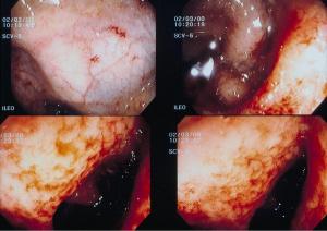 Figura 2- Visualização endoscópica das mucosas colônica e ileal evidenciando ulcerações macroscópicas, sangramento espontâneo e ingurgitamento vascular.