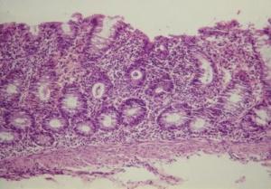 Figura 3- Microfotografia de material de biópsia retal evidenciando lesões histopatológicas características de Colite: solução de continuidade do epitélio colônico, aumento acentuado do infiltrado linfo-plasmocitário na lâmina própria, com presença aumentada de eosinófilos, glândulas crípticas com diminuição de células produtoras de muco, e presença de abscesso críptico com infiltrado de neutrófilos.