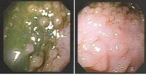 Figura 4- Fotografia da mucosa colônica evidenciando a formação de múltiplos nódulos em um paciente portador de PA.