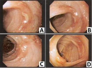 Figura 6- Fotografias da mucosa colônica evidenciando a presença focal de lesões aftosas em paciente portador de PA.