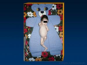 Figura 11- Fotografia da paciente evidenciando distensão abdominal e hipotonia muscular.