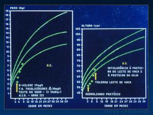 Figura 12- Evolução clínica com evidente recuperação nutricional após a introdução de fórmula hipoalergênica.