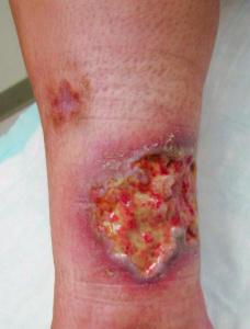 Figura 3- Lesão ulcerosa típica de PG na perna.